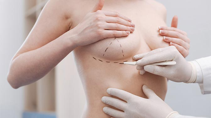 Que tan buena es la cirugía de aumento de senos
